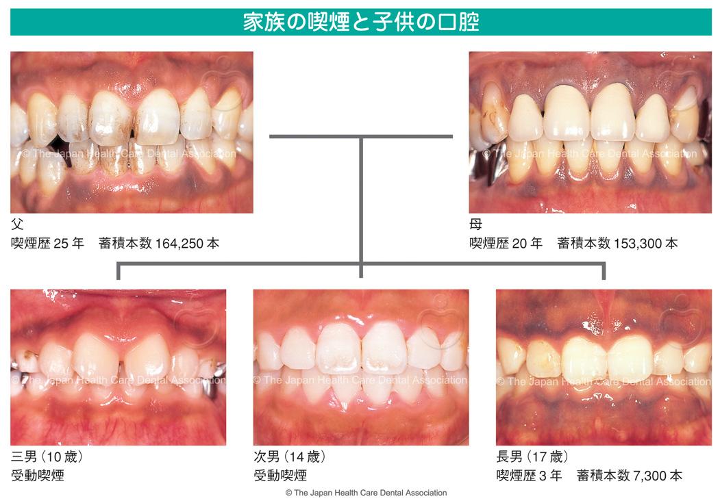 「受動喫煙 歯茎」の画像検索結果
